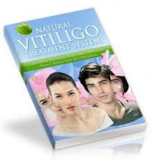 Vitiligo causes